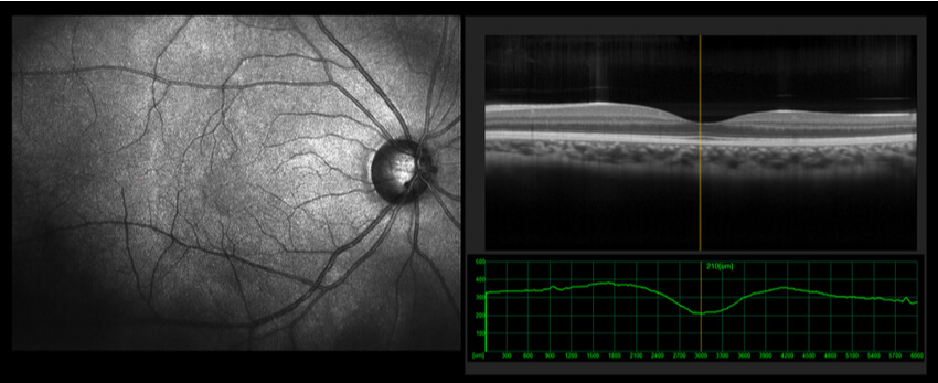 What Is an OCT Eye Scan